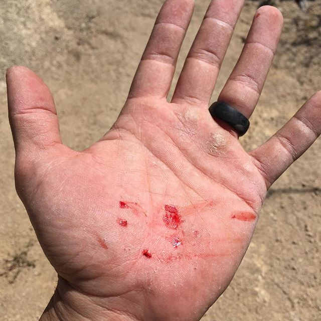 Bouldering aftermath. Leap of faith to get off some rocks and back to camp. Foot slipped and I had to leave some skin behind when I reached the other side. Better than a 20′ drop.